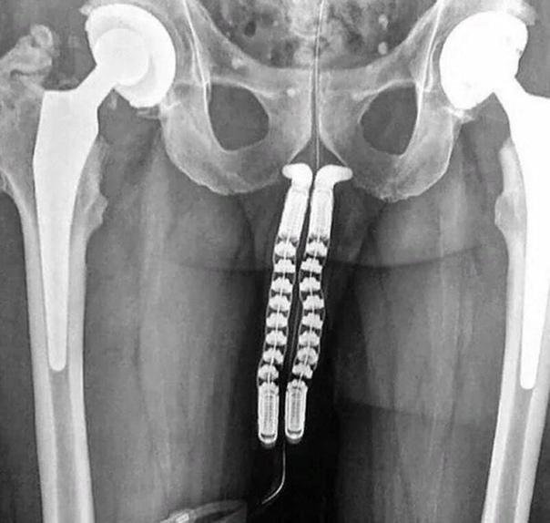Какая интересная работа у рентгенологов