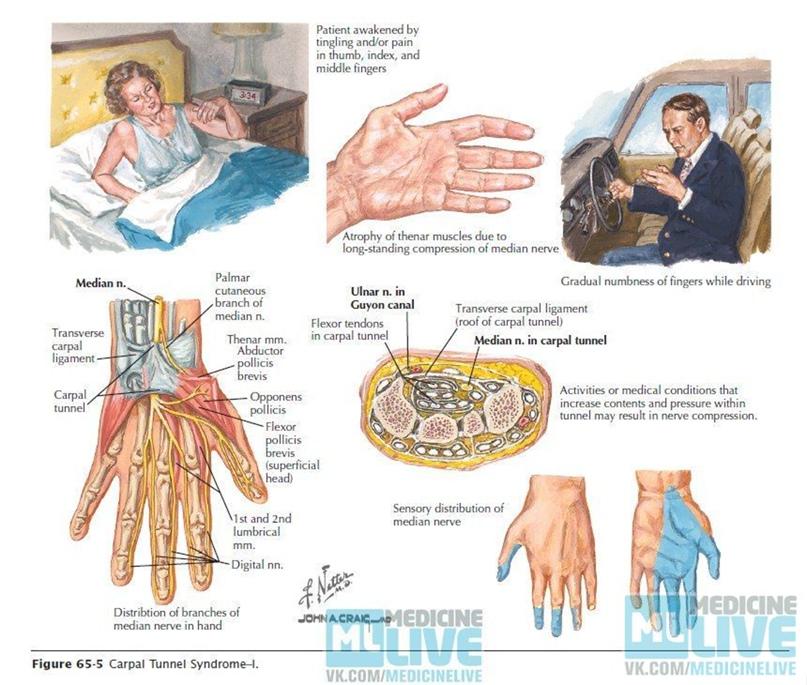 Туннельный синдром запястного канала