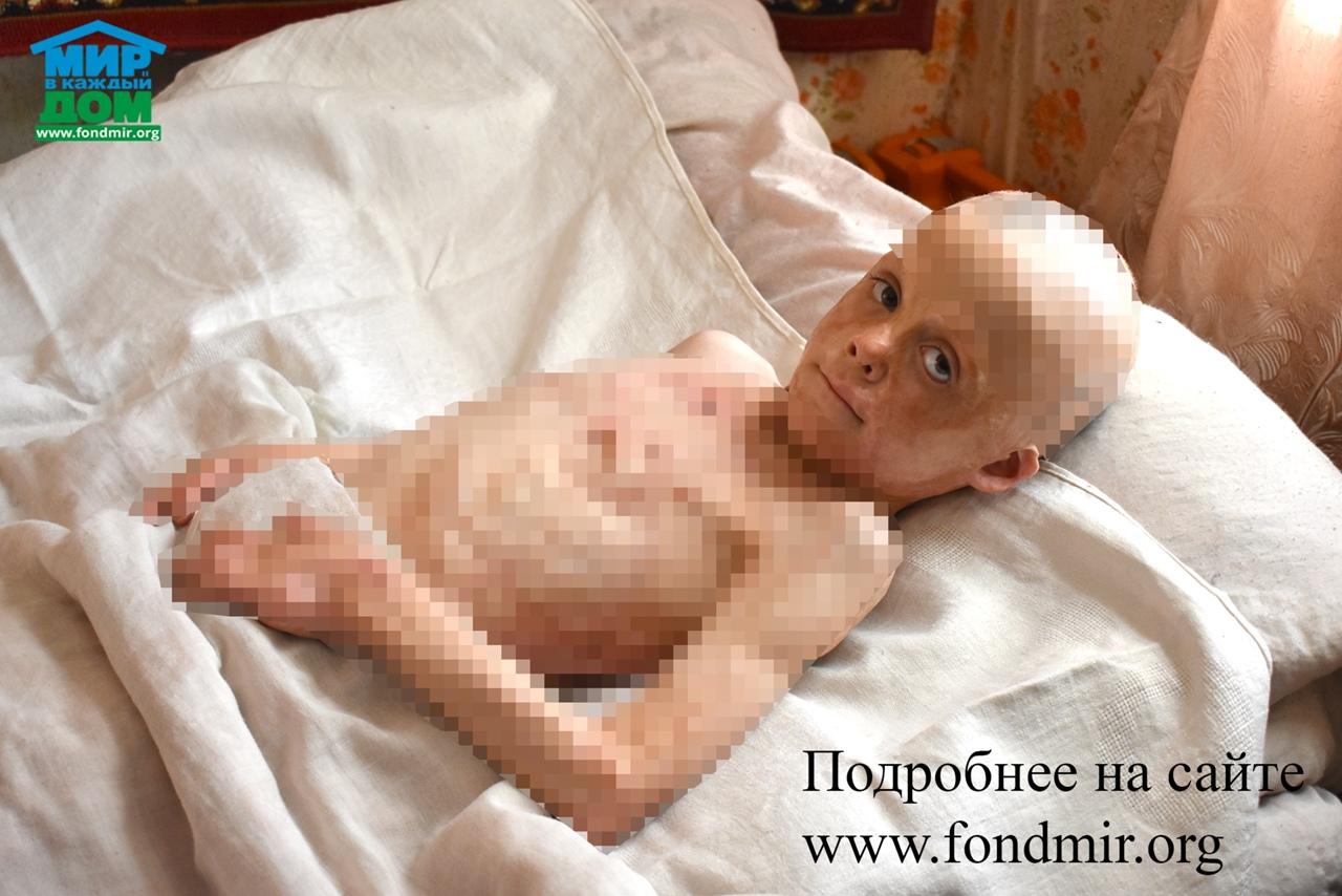 🟢 Игорь Ш., 7 лет, Рязанская область.