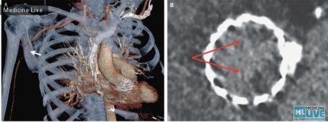 Окклюзия подмышечной артерии после TAVR