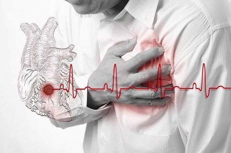 В случае сердечного приступа, у вас есть только 10 секунд, чтобы спасти свою жиз...