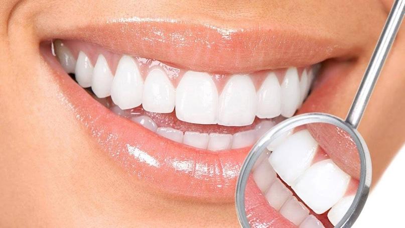 Натуральное отбеливание зубов!